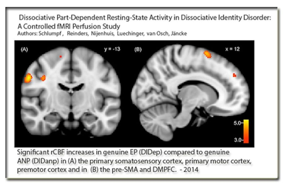 An MRI that shows the location of patient's alternate selves on her brain. The patient is diagnosed with Dissociative Identity Disorder