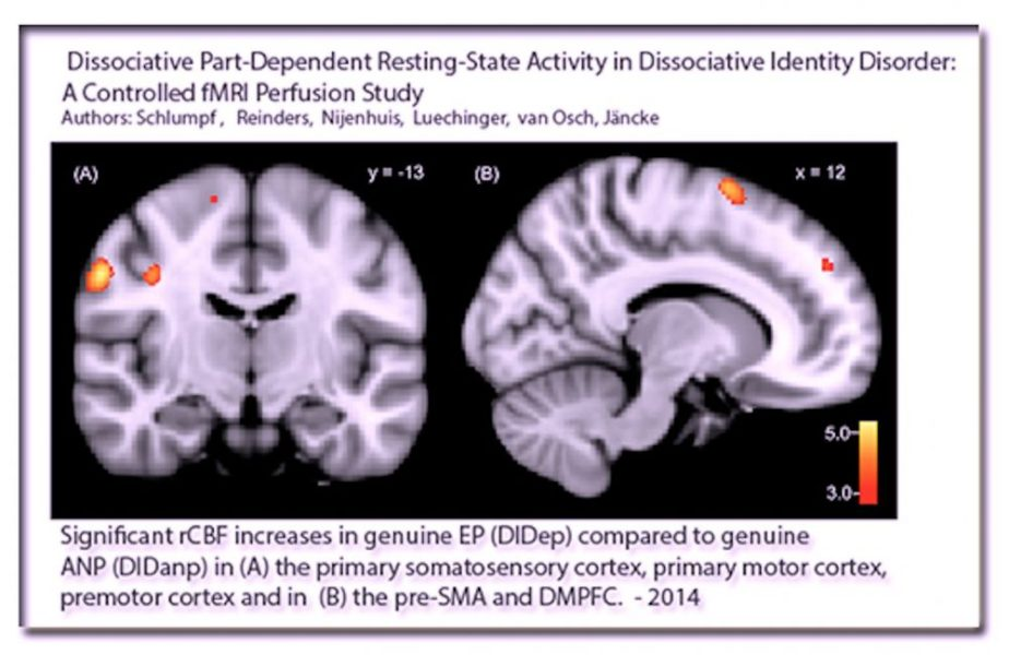 This MRI scan shows an alternate switching to another alternate